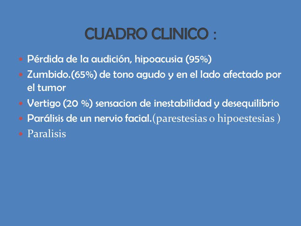 CUADRO CLINICO : Pérdida de la audición, hipoacusia (95%)