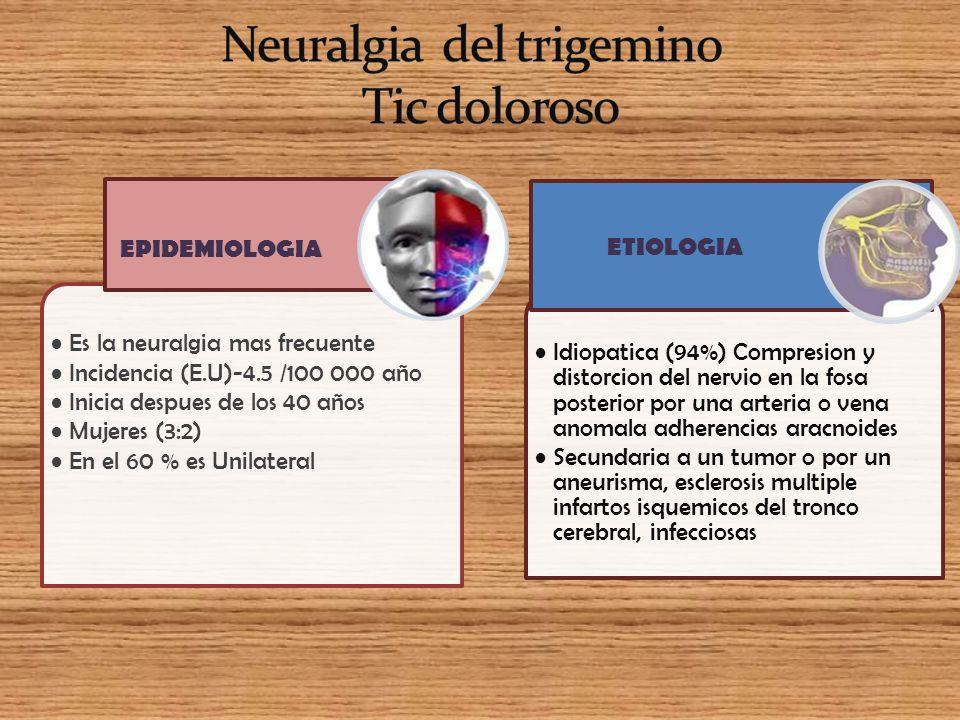 Neuralgia del trigemino Tic doloroso