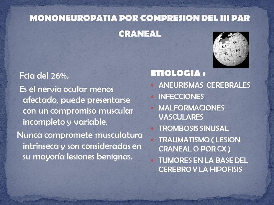 MONONEUROPATIA POR COMPRESION DEL III PAR CRANEAL
