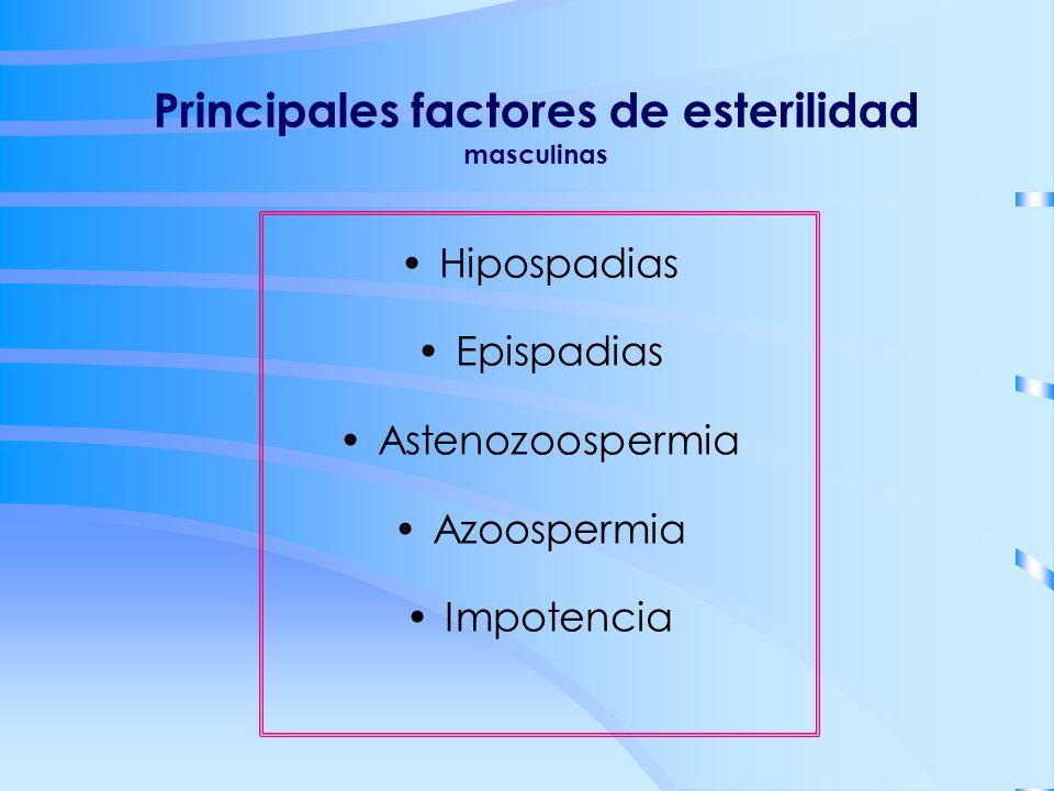 Principales factores de esterilidad masculinas