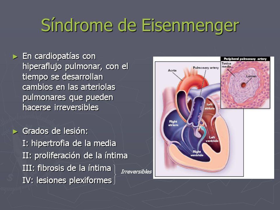 Síndrome de Eisenmenger