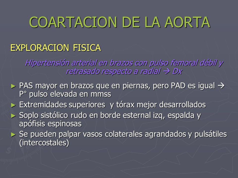 COARTACION DE LA AORTA EXPLORACION FISICA