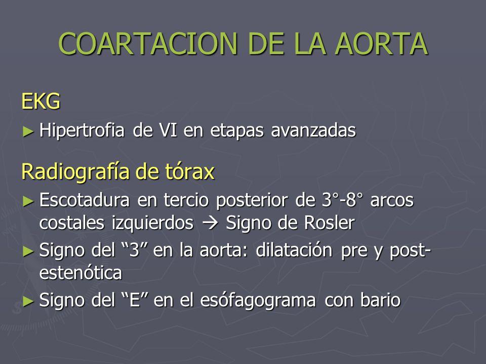 COARTACION DE LA AORTA EKG Radiografía de tórax