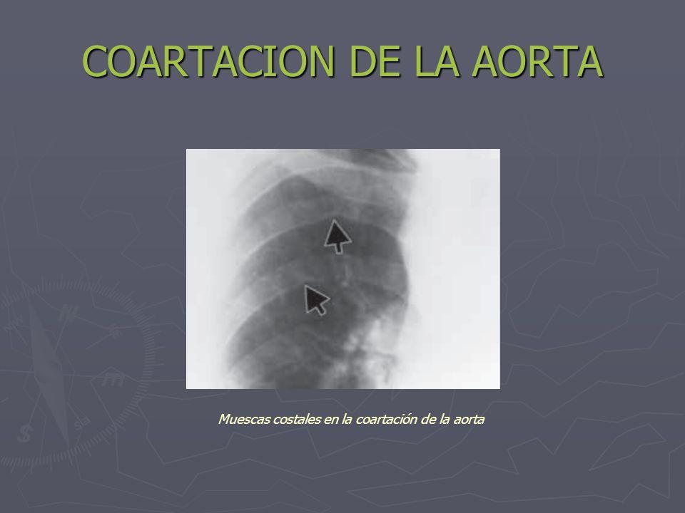 Muescas costales en la coartación de la aorta