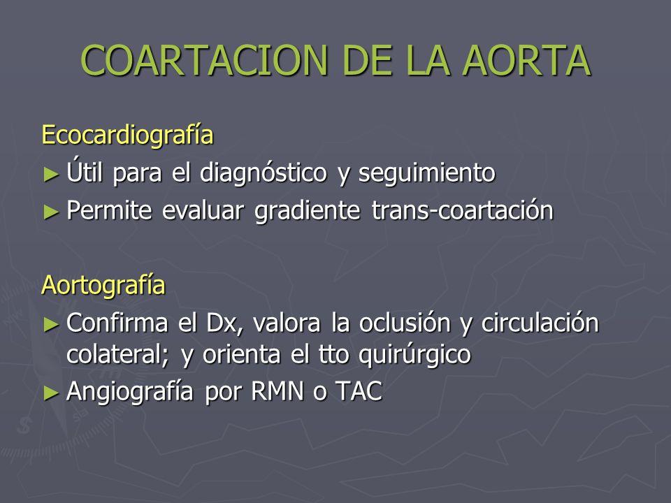 COARTACION DE LA AORTA Ecocardiografía
