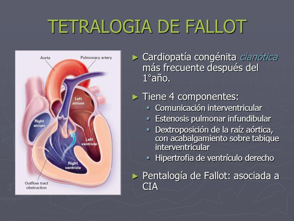 TETRALOGIA DE FALLOT Cardiopatía congénita cianótica más frecuente después del 1°año. Tiene 4 componentes: