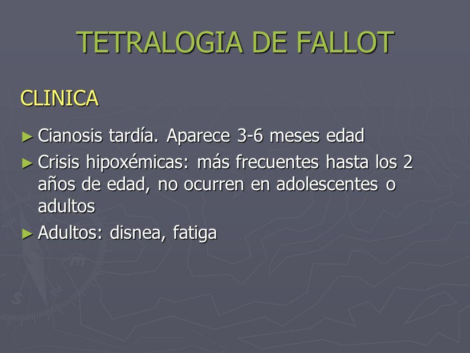 TETRALOGIA DE FALLOT CLINICA Cianosis tardía. Aparece 3-6 meses edad