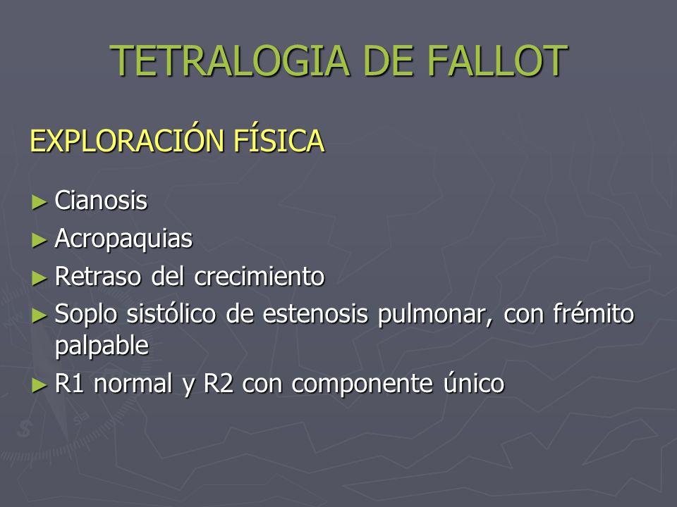 TETRALOGIA DE FALLOT EXPLORACIÓN FÍSICA Cianosis Acropaquias