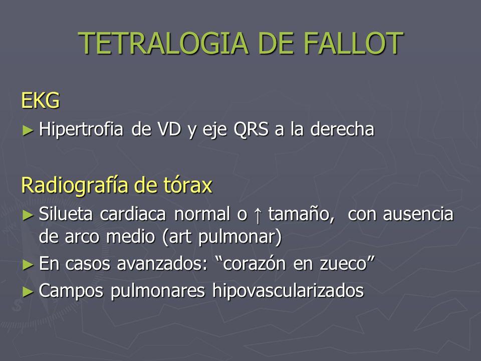 TETRALOGIA DE FALLOT EKG Radiografía de tórax