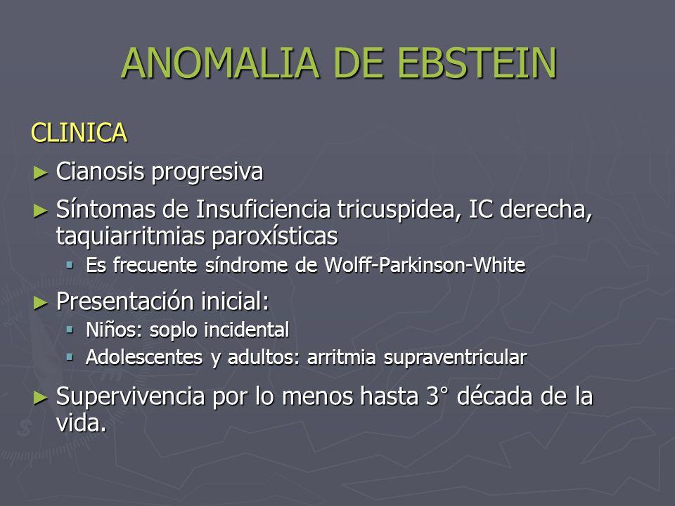ANOMALIA DE EBSTEIN CLINICA Cianosis progresiva