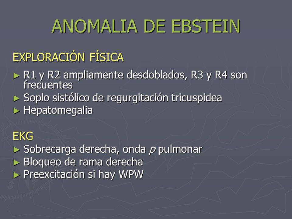 ANOMALIA DE EBSTEIN EXPLORACIÓN FÍSICA EKG