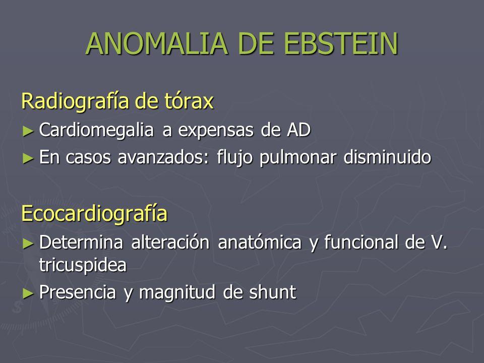 ANOMALIA DE EBSTEIN Radiografía de tórax Ecocardiografía