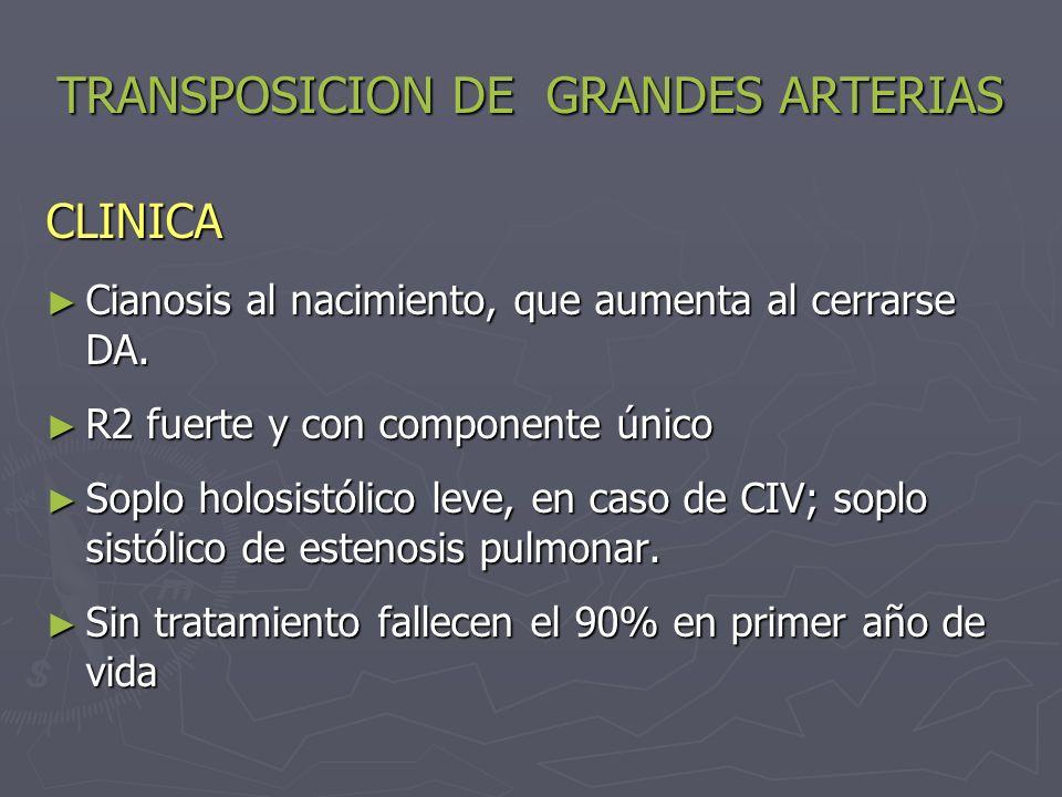TRANSPOSICION DE GRANDES ARTERIAS