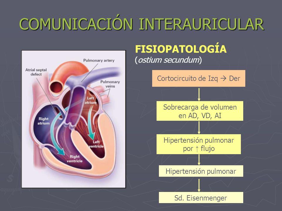 COMUNICACIÓN INTERAURICULAR