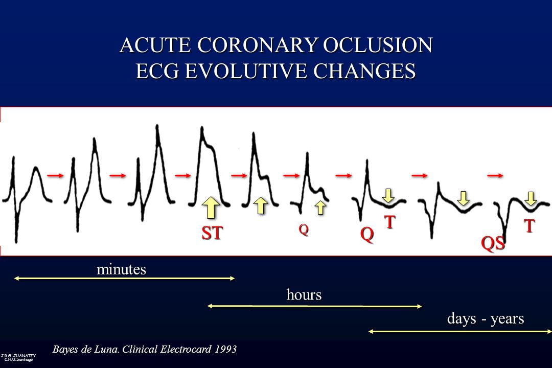 ACUTE CORONARY OCLUSION ECG EVOLUTIVE CHANGES