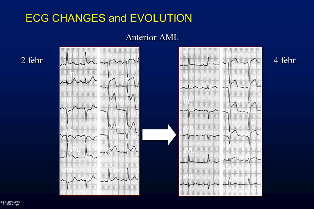 ECG CHANGES and EVOLUTION