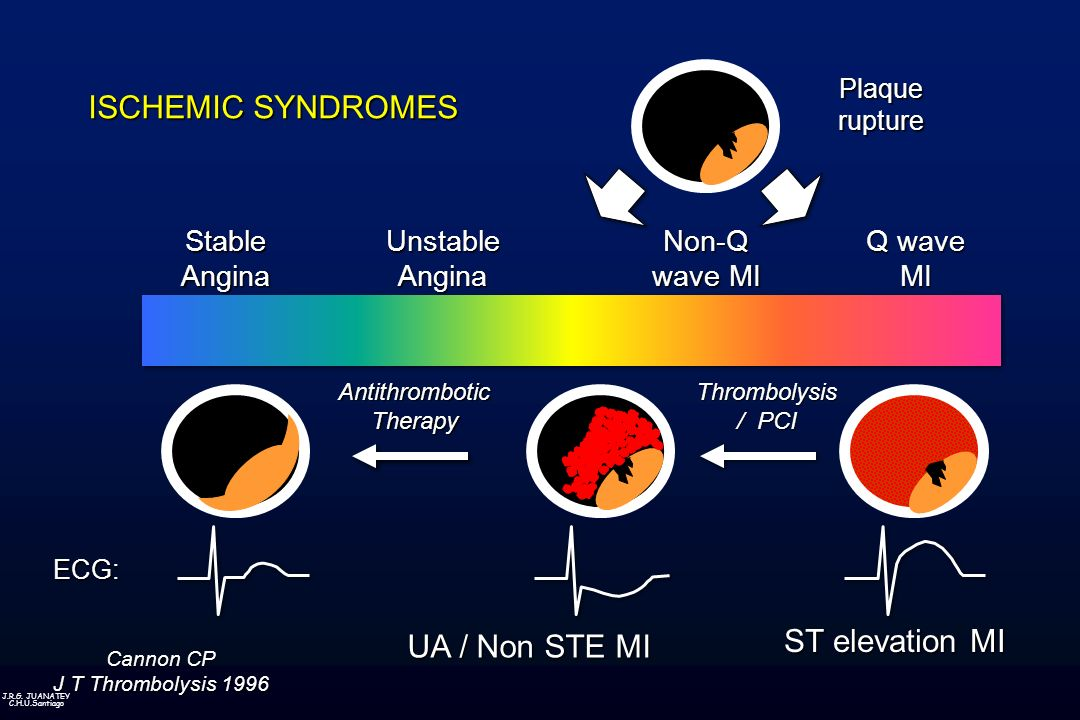 ISCHEMIC SYNDROMES ST elevation MI UA / Non STE MI Stable Angina