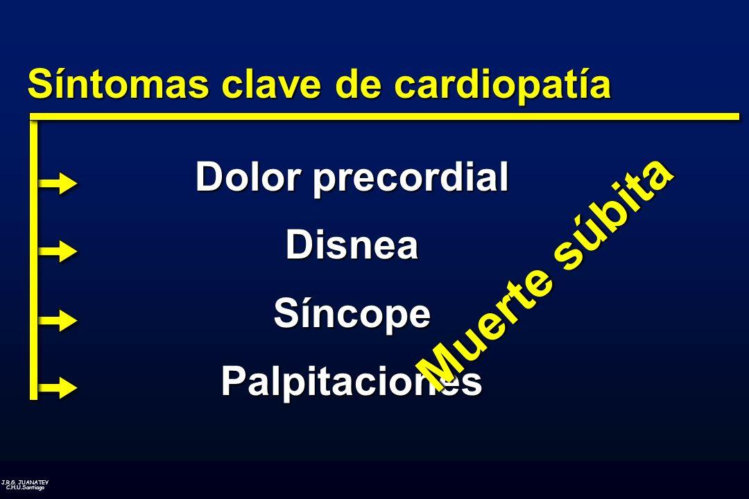 Síntomas clave de cardiopatía