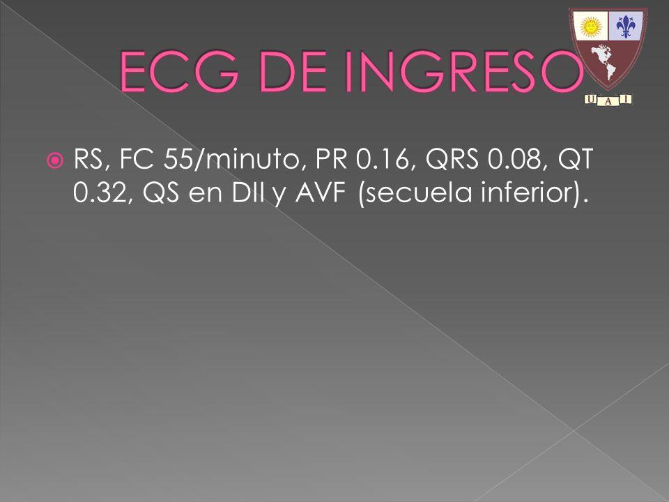 ECG DE INGRESO RS, FC 55/minuto, PR 0.16, QRS 0.08, QT 0.32, QS en DII y AVF (secuela inferior).