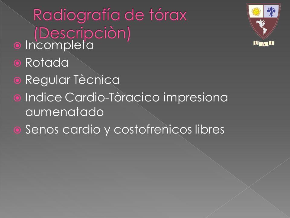 Radiografía de tórax (Descripciòn)