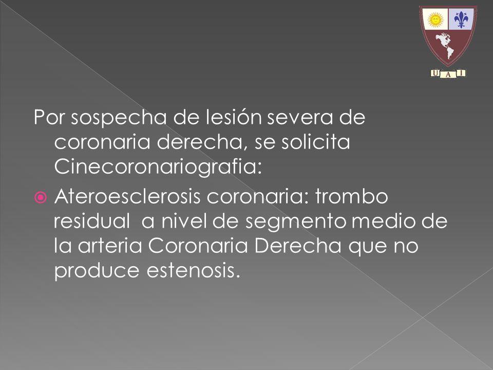 Por sospecha de lesión severa de coronaria derecha, se solicita Cinecoronariografia: