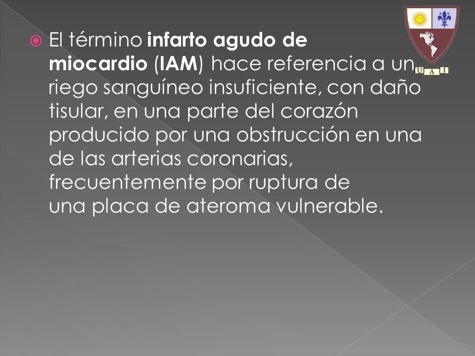 El término infarto agudo de miocardio (IAM) hace referencia a un riego sanguíneo insuficiente, con daño tisular, en una parte del corazón producido por una obstrucción en una de las arterias coronarias, frecuentemente por ruptura de una placa de ateroma vulnerable.