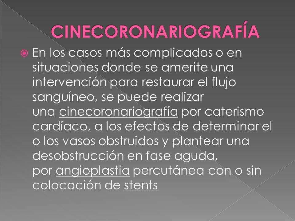 CINECORONARIOGRAFÍA
