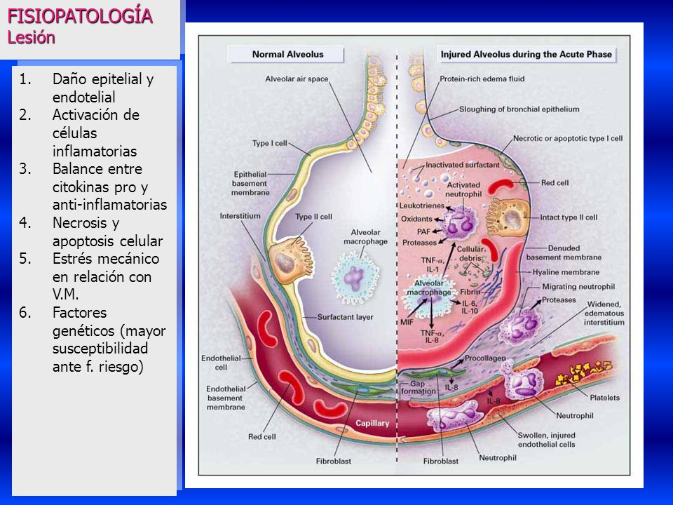 FISIOPATOLOGÍA Lesión Daño epitelial y endotelial