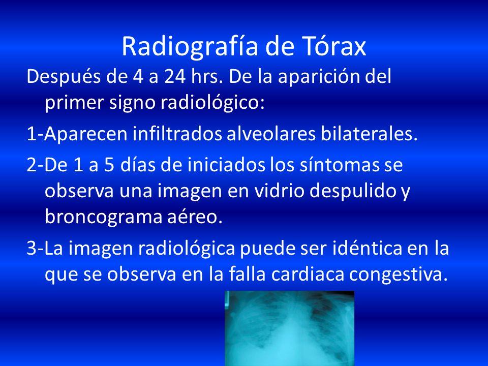 Radiografía de Tórax Después de 4 a 24 hrs. De la aparición del primer signo radiológico: 1-Aparecen infiltrados alveolares bilaterales.