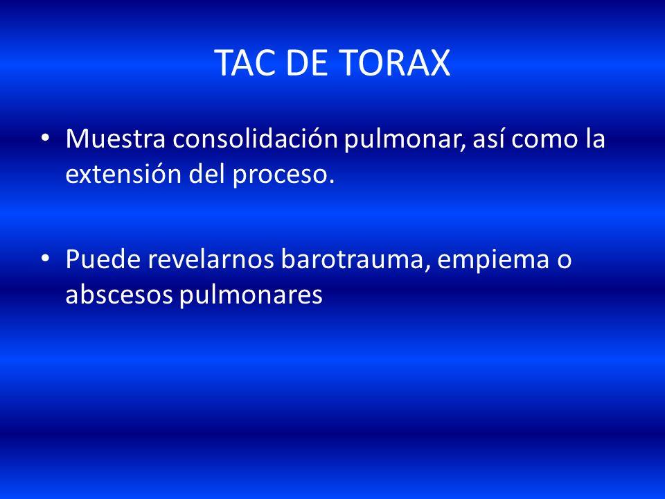 TAC DE TORAX Muestra consolidación pulmonar, así como la extensión del proceso.
