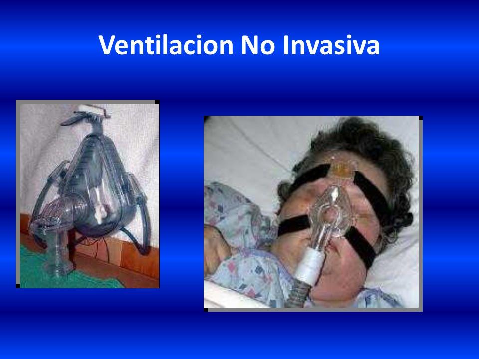 Ventilacion No Invasiva