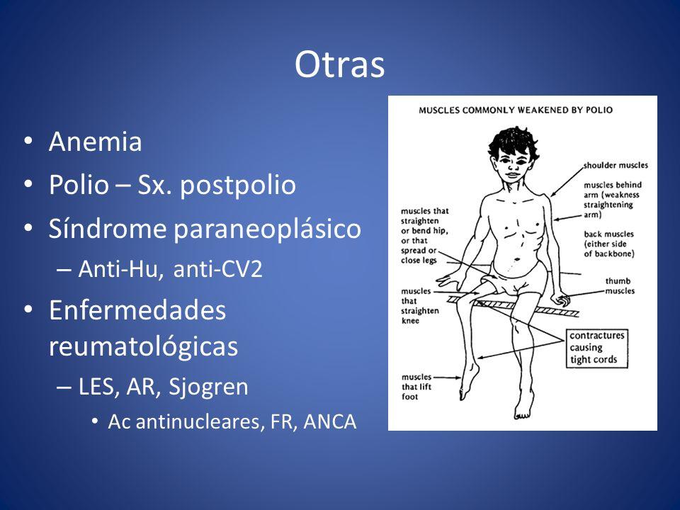 Otras Anemia Polio – Sx. postpolio Síndrome paraneoplásico