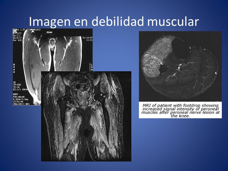 Imagen en debilidad muscular