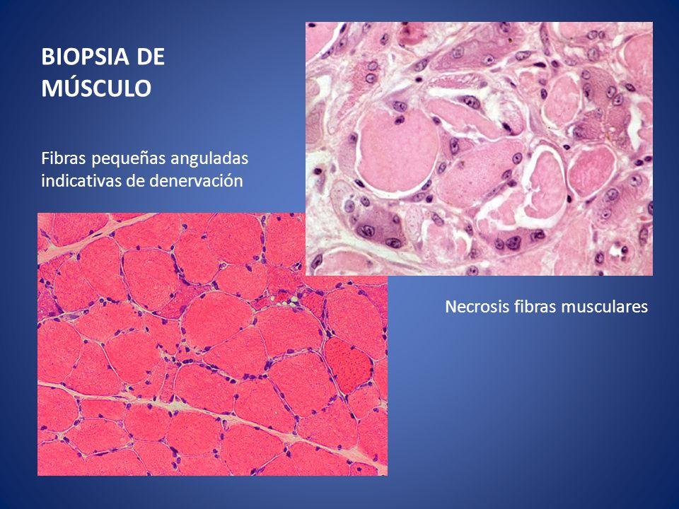 BIOPSIA DE MÚSCULO Fibras pequeñas anguladas indicativas de denervación Necrosis fibras musculares