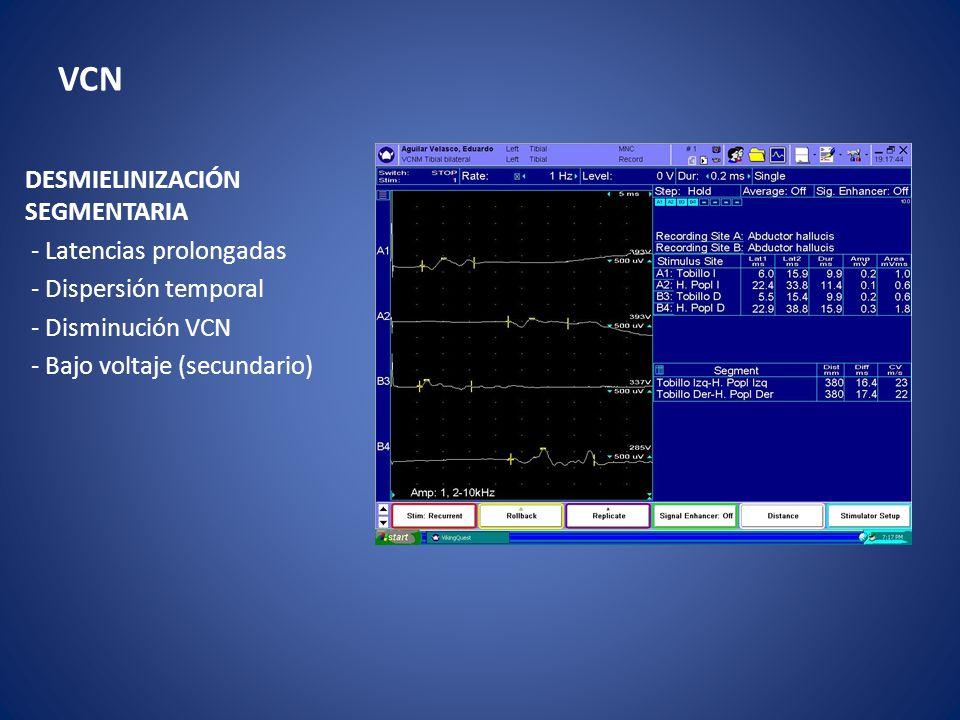 VCN DESMIELINIZACIÓN SEGMENTARIA - Latencias prolongadas