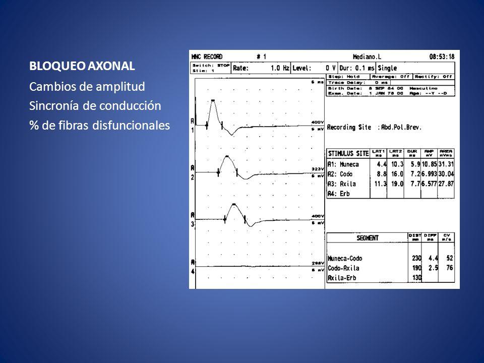 BLOQUEO AXONAL Cambios de amplitud Sincronía de conducción % de fibras disfuncionales