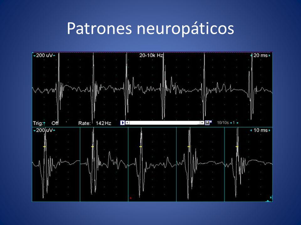 Patrones neuropáticos