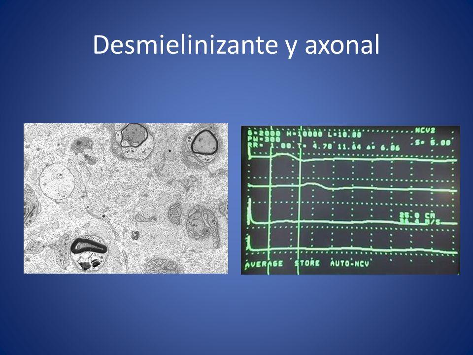 Desmielinizante y axonal