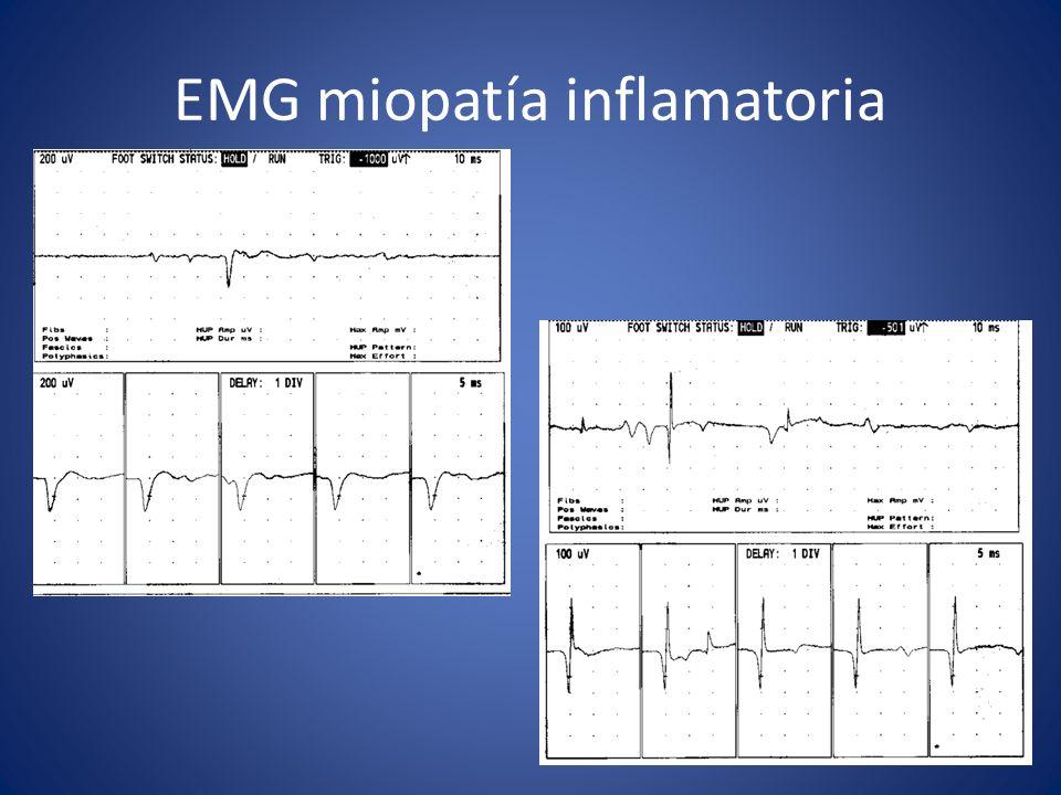 EMG miopatía inflamatoria