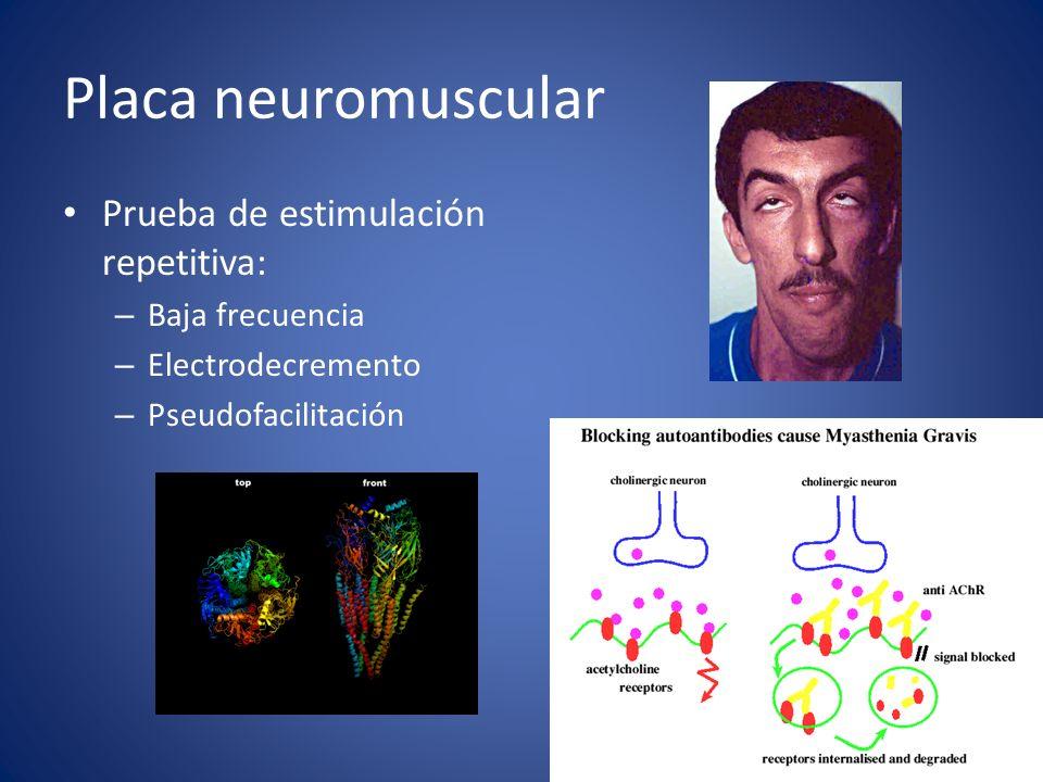 Placa neuromuscular Prueba de estimulación repetitiva: Baja frecuencia