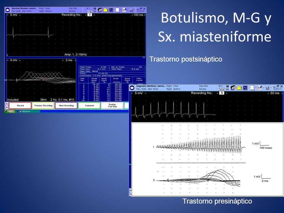 Botulismo, M-G y Sx. miasteniforme