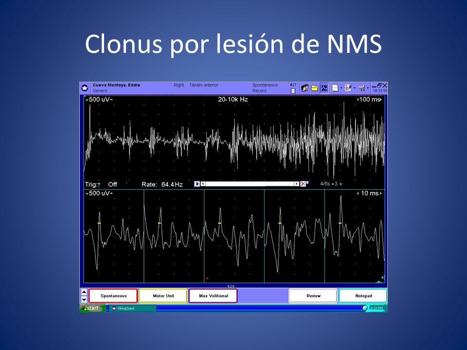 Clonus por lesión de NMS