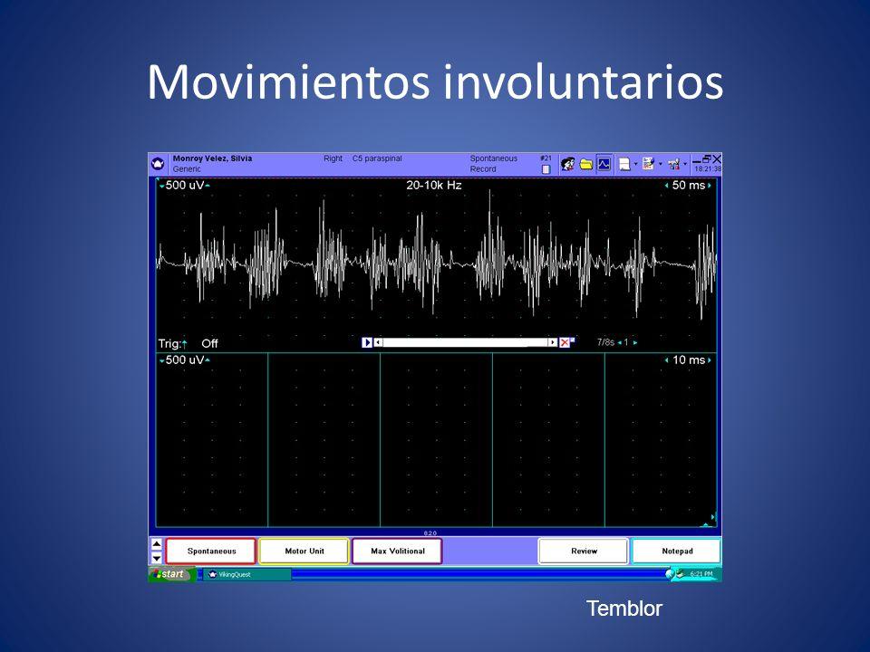 Movimientos involuntarios