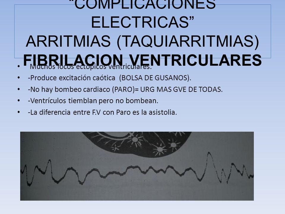 COMPLICACIONES ELECTRICAS ARRITMIAS (TAQUIARRITMIAS) FIBRILACION VENTRICULARES