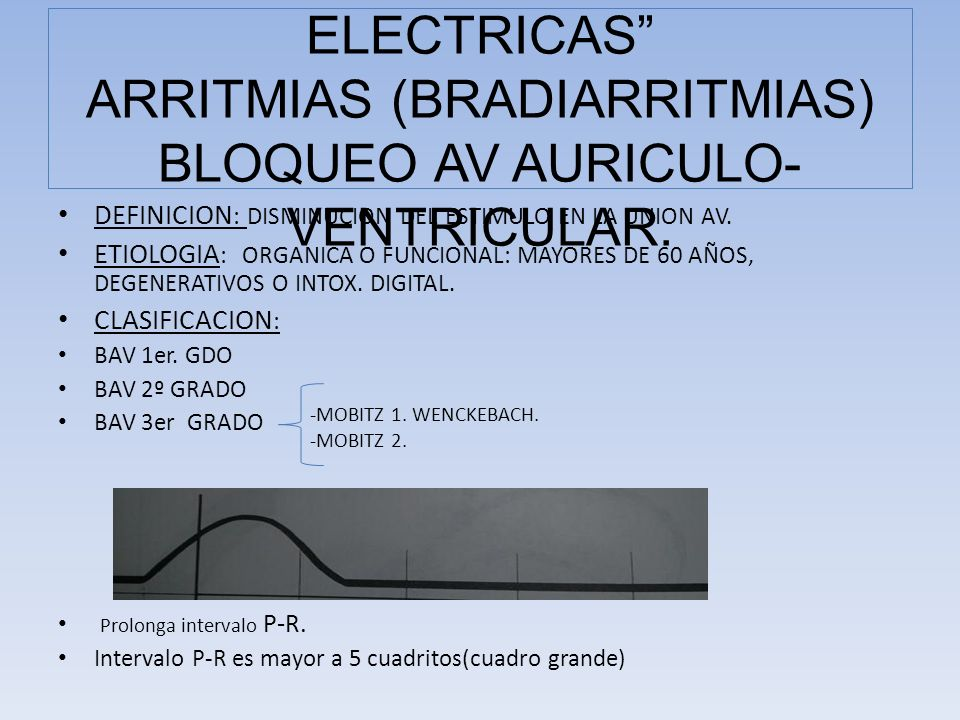 COMPLICACIONES ELECTRICAS ARRITMIAS (BRADIARRITMIAS) BLOQUEO AV AURICULO-VENTRICULAR.