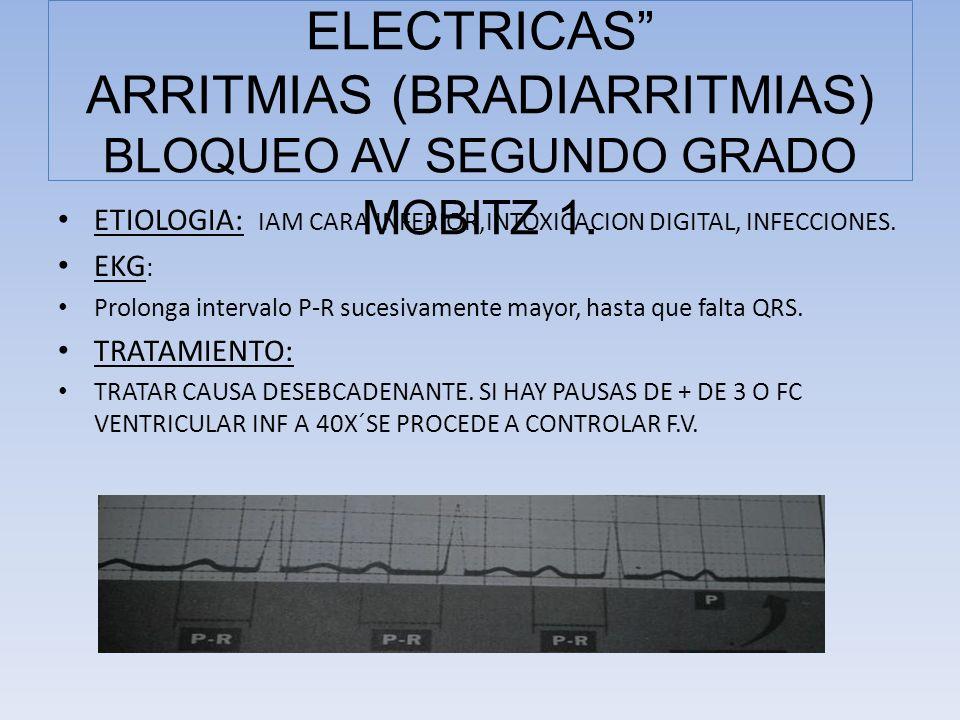COMPLICACIONES ELECTRICAS ARRITMIAS (BRADIARRITMIAS) BLOQUEO AV SEGUNDO GRADO MOBITZ 1.