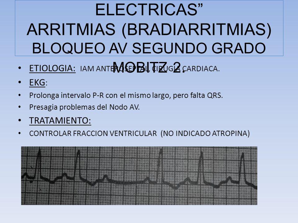 COMPLICACIONES ELECTRICAS ARRITMIAS (BRADIARRITMIAS) BLOQUEO AV SEGUNDO GRADO MOBITZ 2.