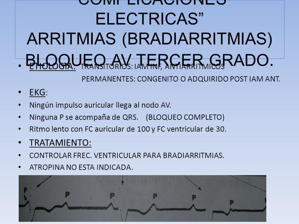 COMPLICACIONES ELECTRICAS ARRITMIAS (BRADIARRITMIAS) BLOQUEO AV TERCER GRADO.