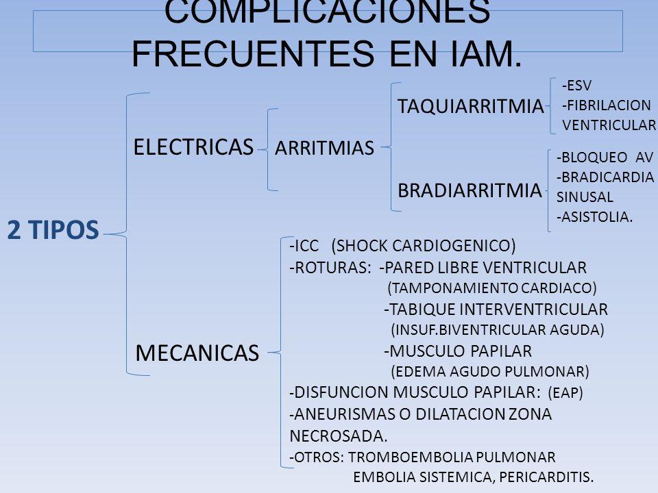 COMPLICACIONES FRECUENTES EN IAM.