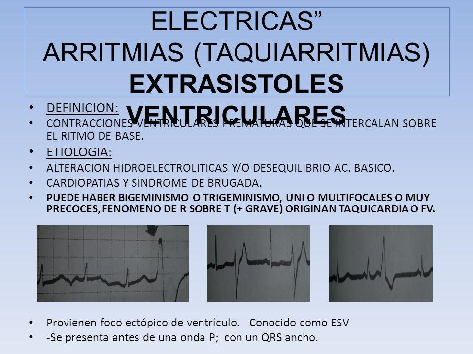 COMPLICACIONES ELECTRICAS ARRITMIAS (TAQUIARRITMIAS) EXTRASISTOLES VENTRICULARES